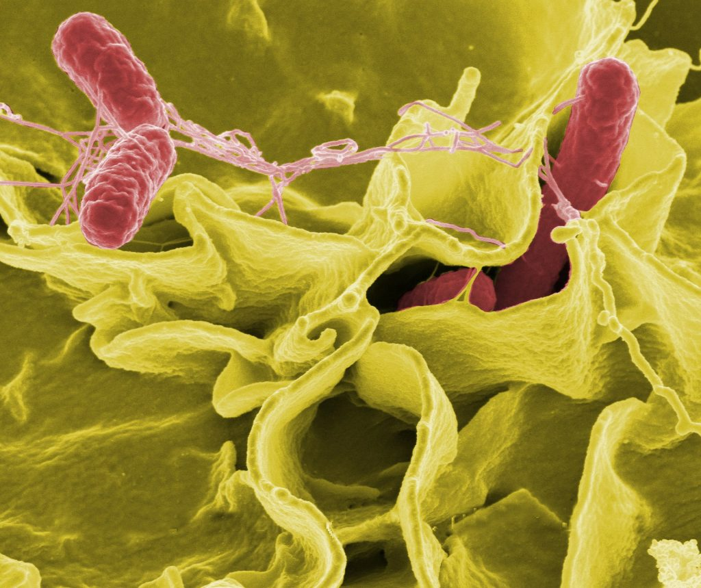Gut Microbiome and Inflammation